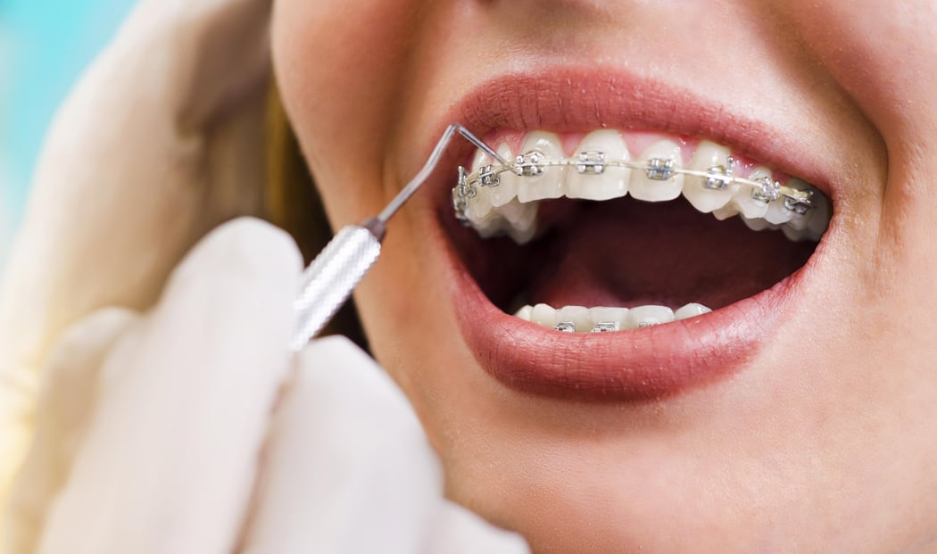 5 Myths About Mouth & Teeth Whitening